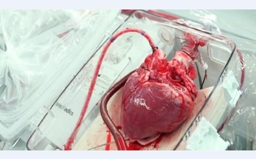 Srce Serijski Ubica