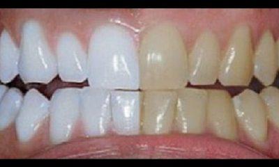 Kurkuma Bijeli Zubi