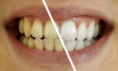 Zuti Zubi Zdraviji