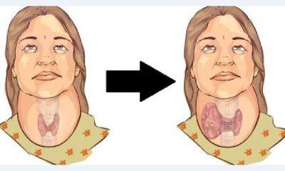 Stitna Zlijezda Simptomi